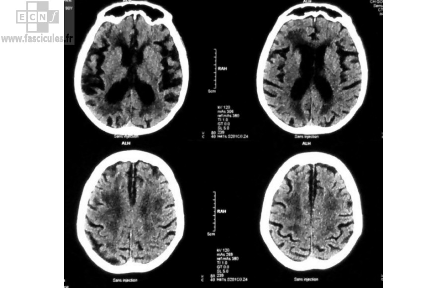 neurologie-scanner-cerebral-atrophie-cortico-sous-corticale