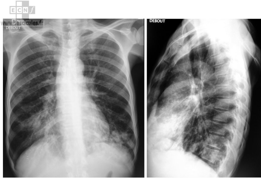 radiographie-thorax-syndrome-interstitiel-mycobacteries-atypiques